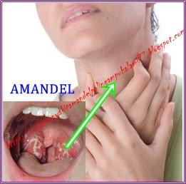 http://obatpenyakitamandelpalingampuhalami97.blogspot.com/2015/08/obat-penyakit-amandel-yang-alami-tanpa-efek-samping.html