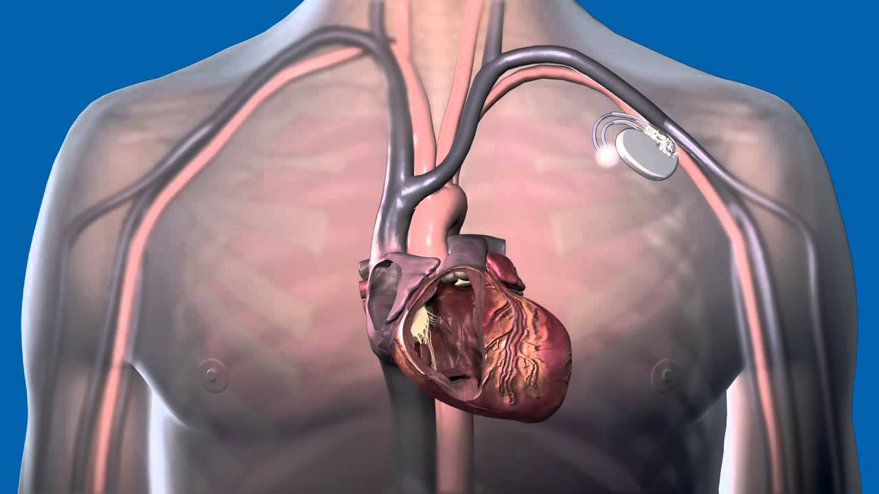 Best Heart Surgery Hospital In India Pacemaker Implantation Surgery