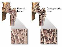Jeni-Jenis Kanker Tulang