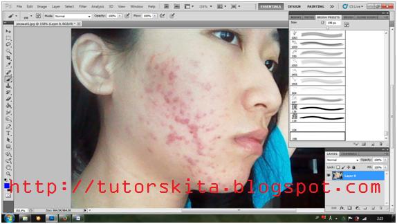 Cara Menghilangkan Noda/Jerawat pada Foto dengan Photoshop-IndoVersion
