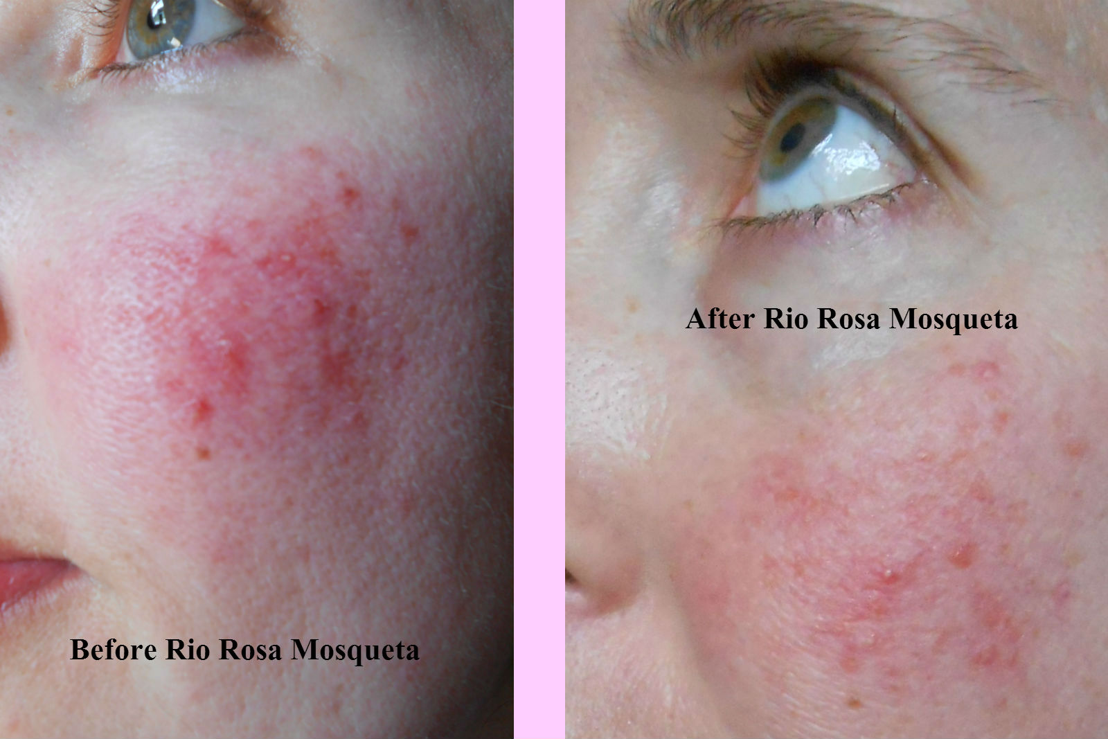 Rio Rosa Mosqueta oil - Product Review On Rosacea Skin