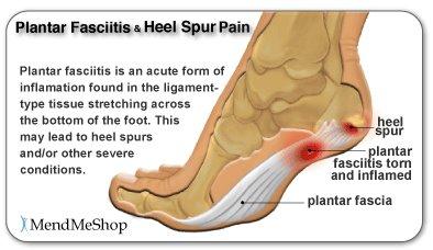 Bottom foot hurts — img 13