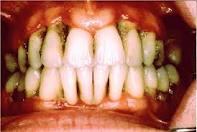 ماهي المواد التي لها تأثيرات سلبية على صحة الفم والأسنان ؟