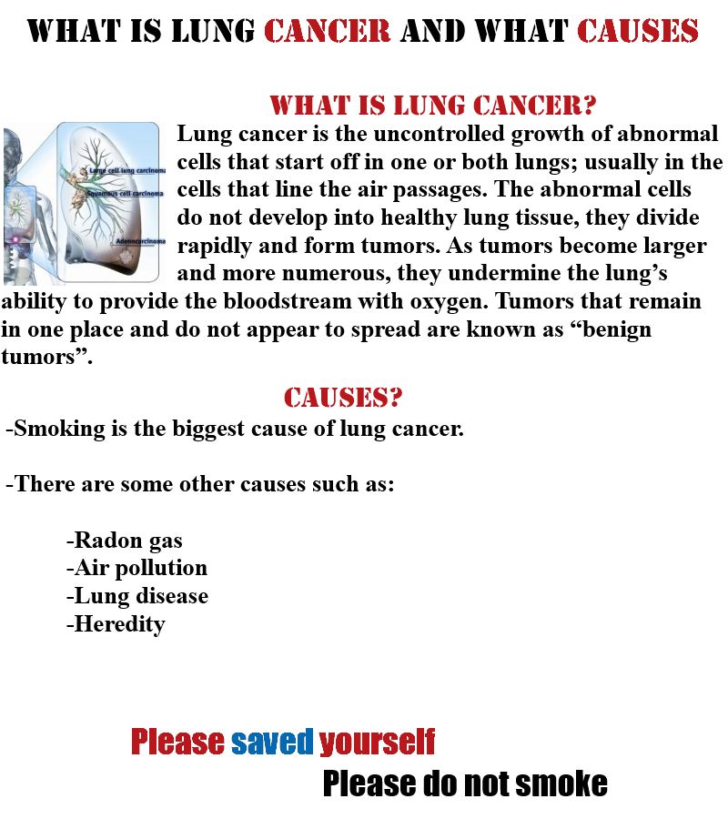 thesis on lung cancer Lung cancer is the most common cancer-related cause of death among men and women lung cancer can be undetected for many years causing it to become more dangerous and possibly fatal there is not cure for lung cancer or any cancer, but if detected in an early stage the lung cancer can be detected, treated, and hopefully terminated.