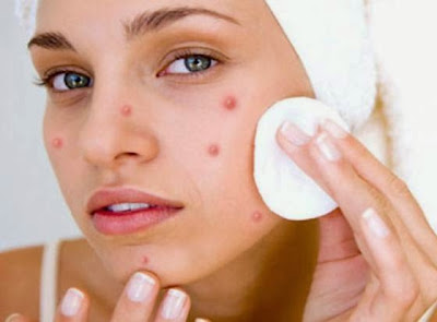 Get rid of pimples Treatment Skin care
