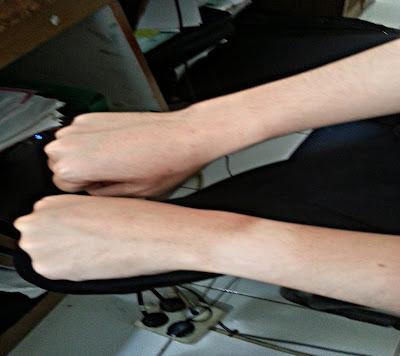 cara menghilangkan belang pada kulit tangan