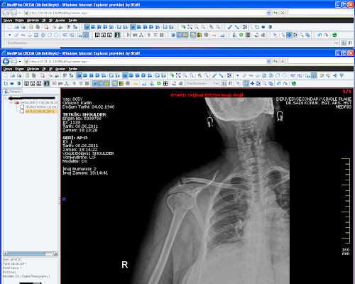 Humeral Head Fracture-1.bp.blogspot.com