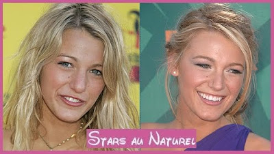 blake lively nose job