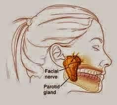 Penyakit Tumor Rahang