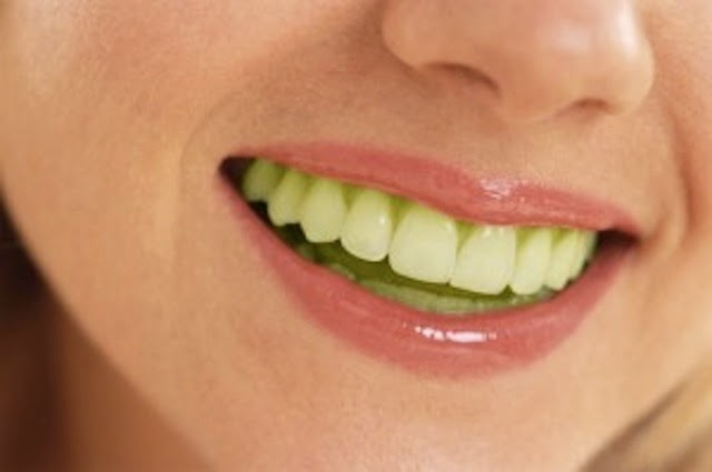 Woman with green teeth smiling