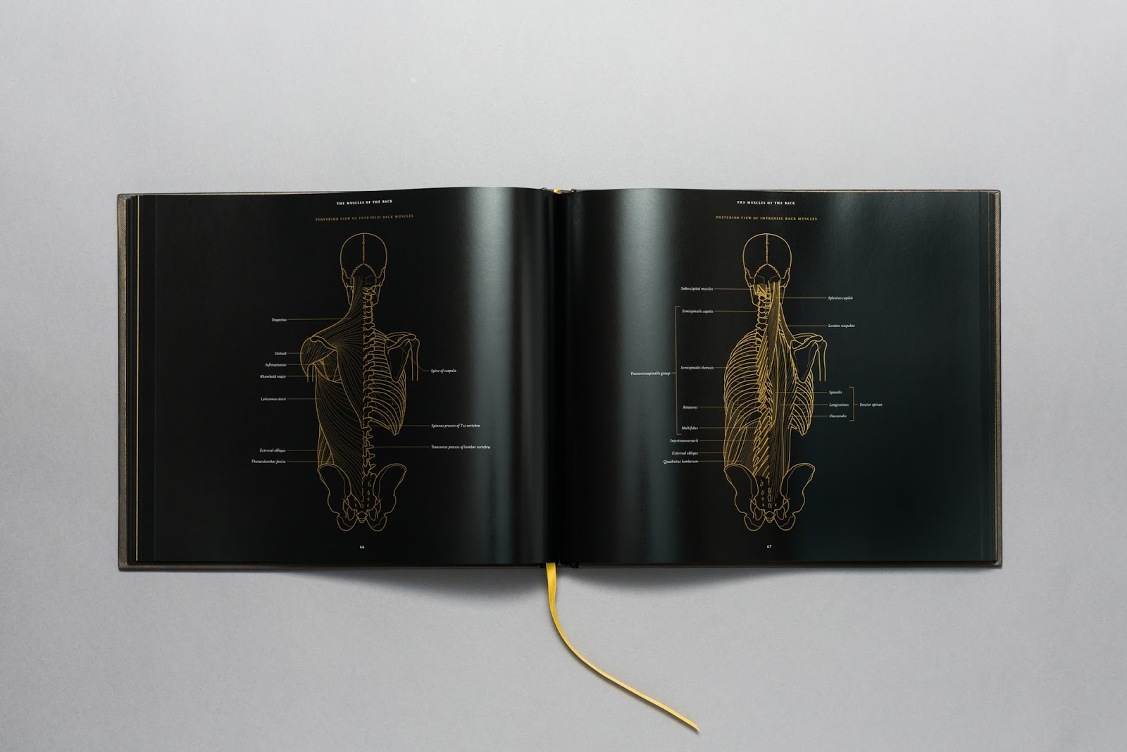 http://morbidanatomy.bigcartel.com/product/anatomy-in-black-by-emily-evans-preorder