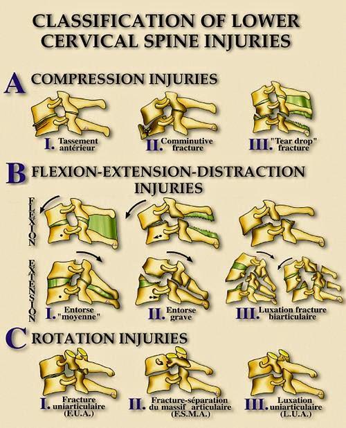 cervical spine fractures