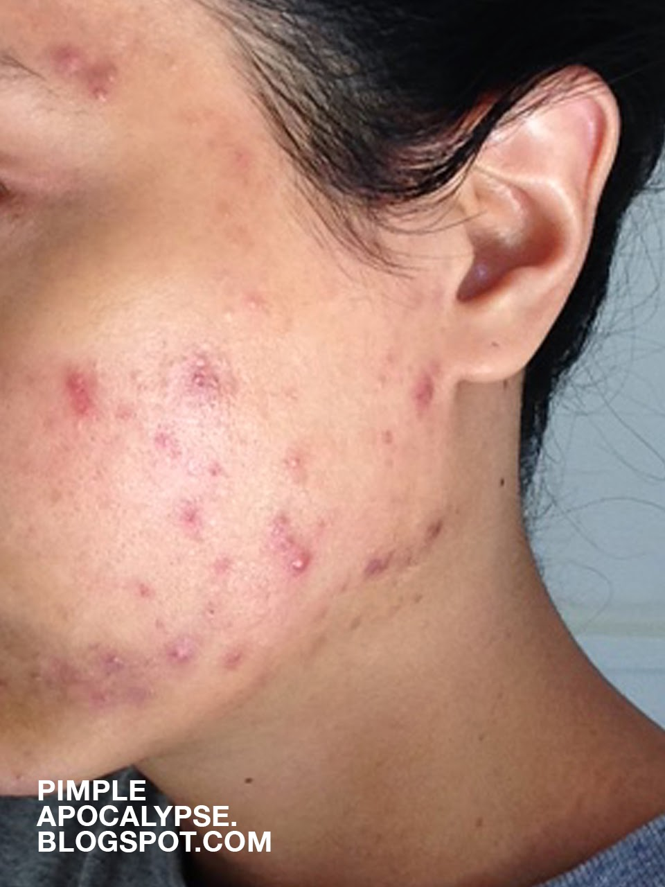 acne breakouts, clogged pores, asian skin, hyper pigmentation, closed comedo, whiteheads