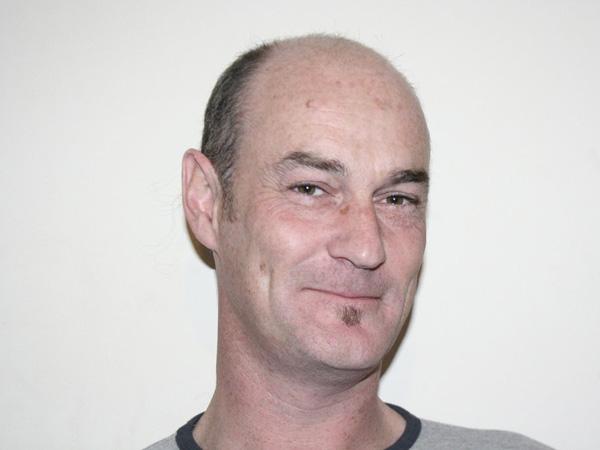 Crazy Hair Styles: balding men hairstyles