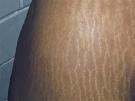 vergetures peau noire