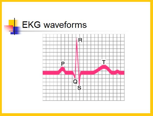 Telemetry Technician Course: EKG Waveform (class 3)