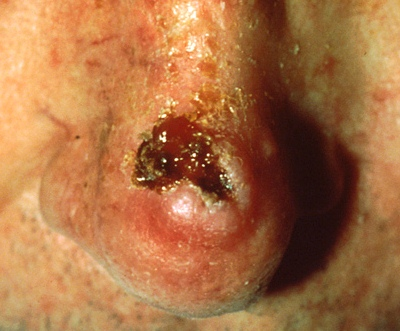 squamous cell skin cancer