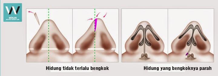 tipe hidung bengkok