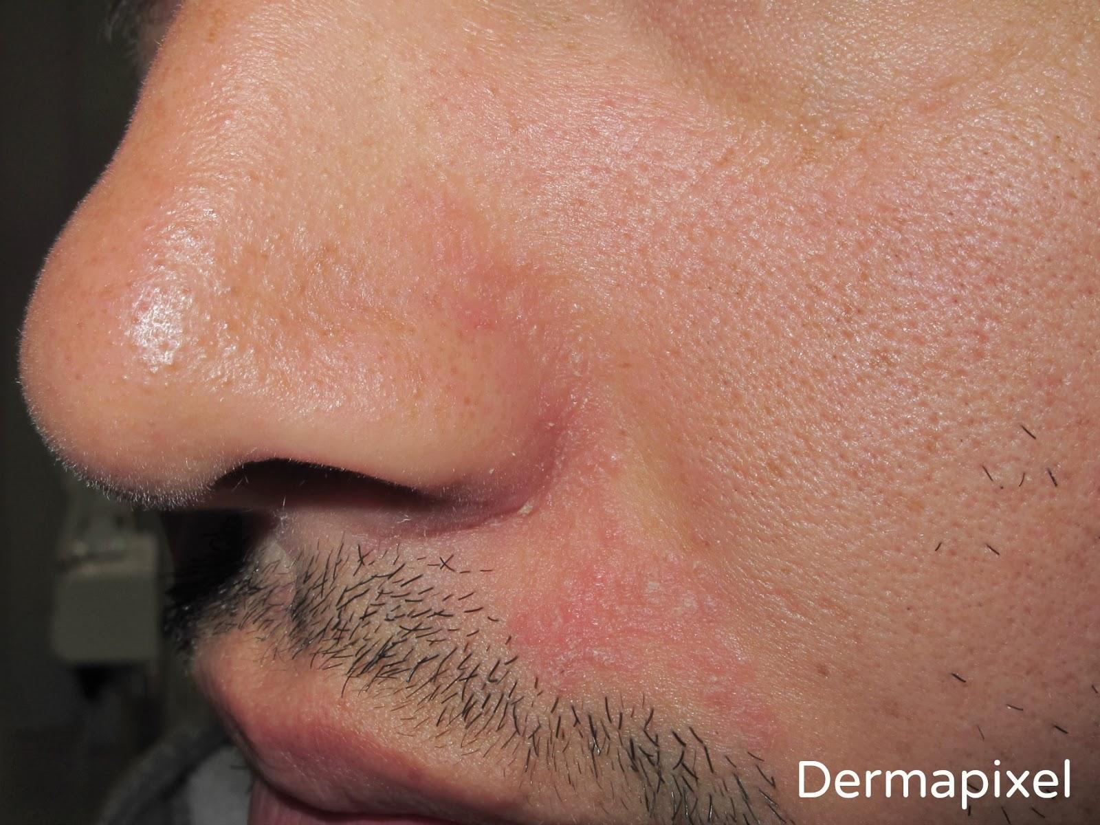 corticosteroides nasales efectos secundarios