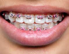 orthodonic braces