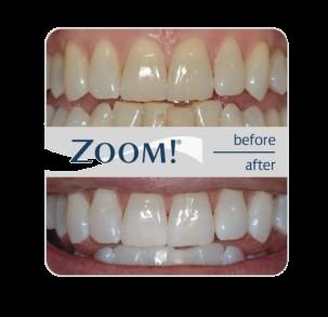 Cara Memutihkan Gigi Secara Alami Tanpa Mengikis Gigi