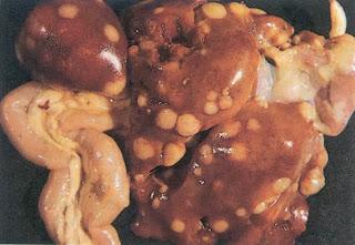 U hạt ở gan, lách ruột và tim