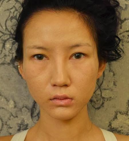 Model Cantik dan Seksi Ini Sengaja Memajang Foto-Fotonya Saat Operasi ...
