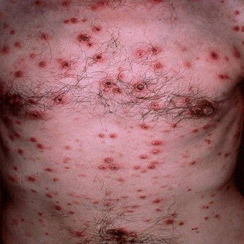 enfermedad gonorrea: