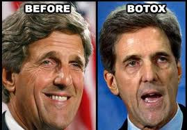 John Kerry Plastic Surgery Before and After Botox and Facelift