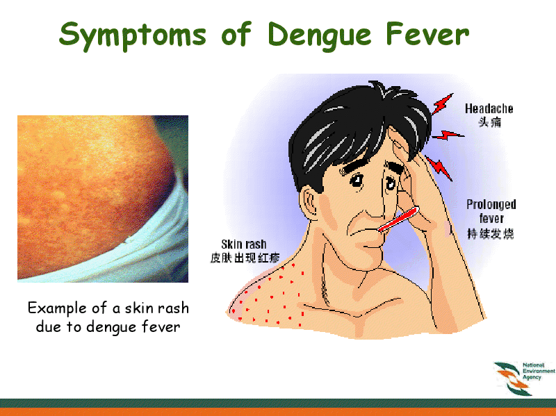 Fever headache