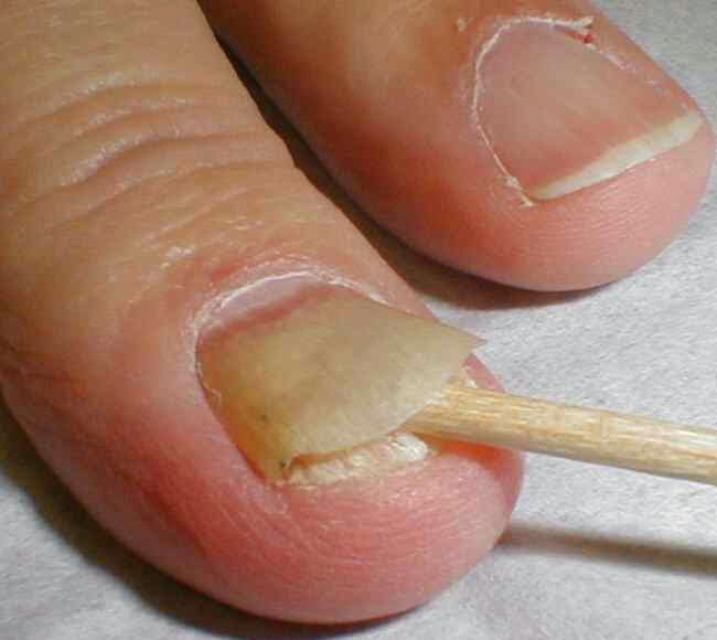 What Causes Fungal Nail Infection and How Can It Be Addressed ...