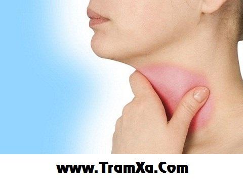 Bị viêm họng tăng bạch cầu đơn nhân & các phòng chữa trị