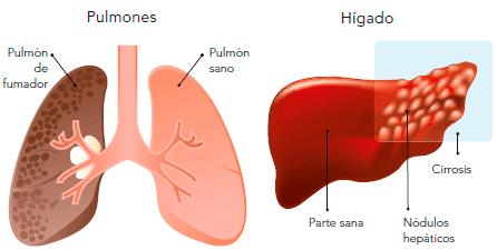 higado afectado por esteroides