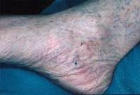 blood clots in foot