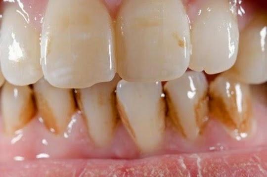 Cara Ampuh Mebersihkan Karang Gigi Sendiri Secara Alami
