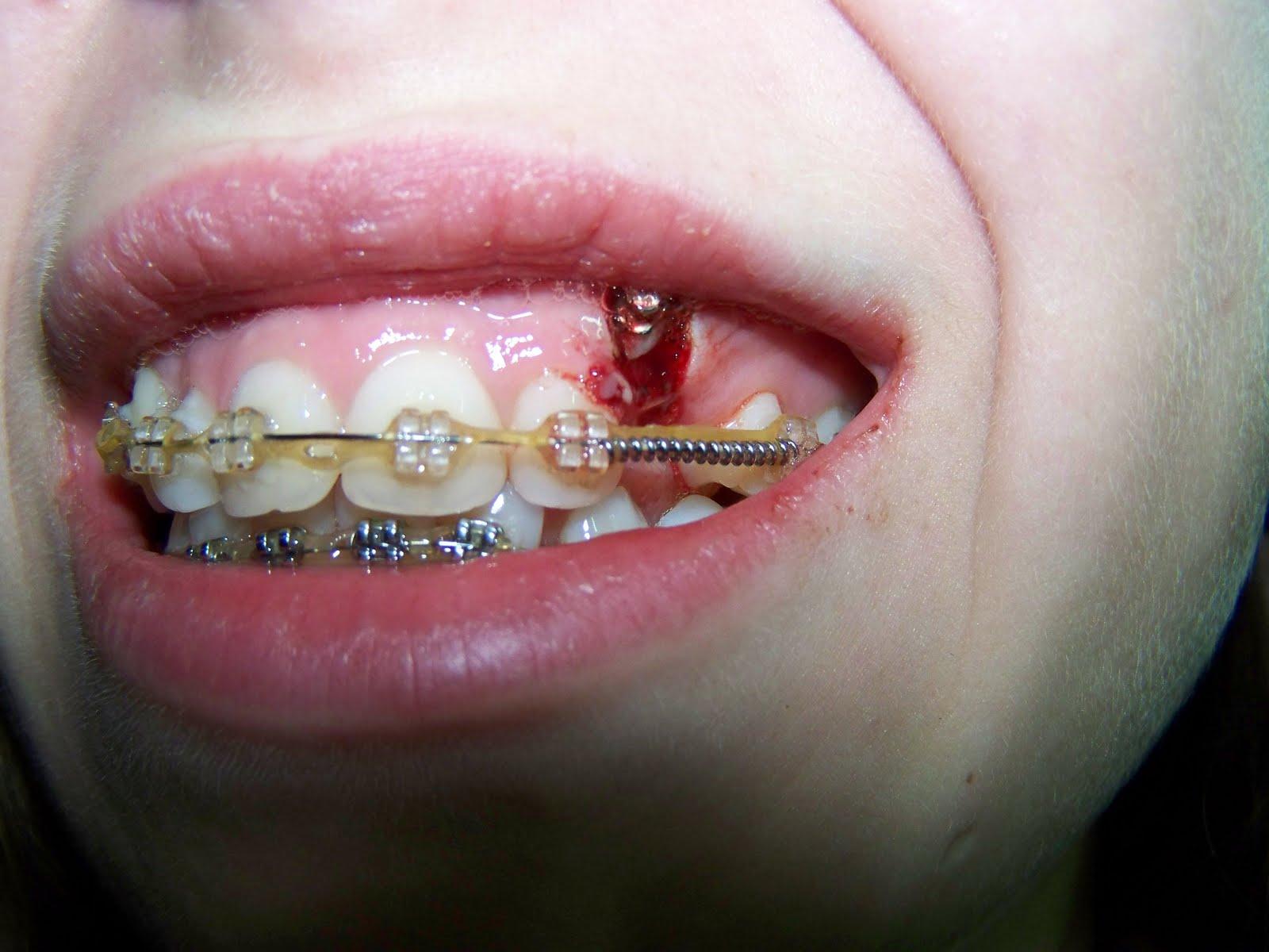 Как выдернуть задний зуб в домашних условиях