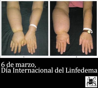 6 de marzo, día internacional del linfedema