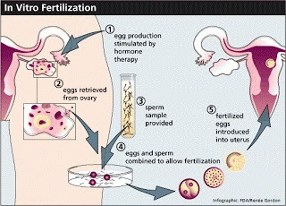 In Vitro Fertilization Prosedur Bayi Tabung Info Kesehatan Indonesia