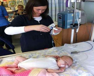 Bebê com 1 dia de vida tem seu coração salvo usando veia jugular de uma vaca