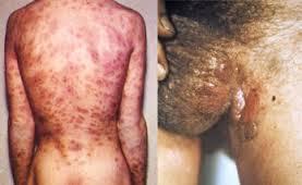 Obat Pencegah Penyakit Sifilis