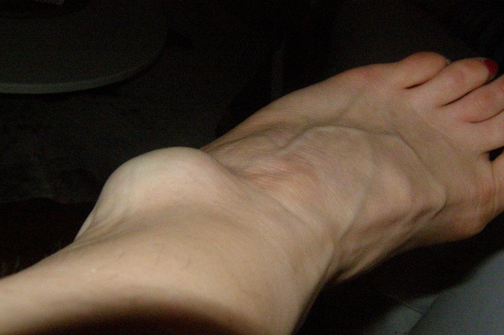 blodpropp i foten