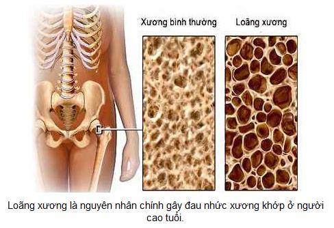 Anlenevn-These-Medicines-Treat-Osteoarthritis-Pain-news.c10mt.com