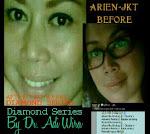 Testimoni Mbak Arien - Jakarta