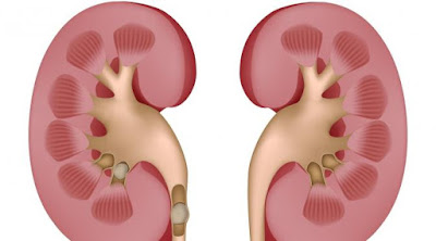 [Health] Bercinta 3 Kali Seminggu Efektif Hilangkan Batu Ginjal
