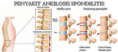 Cara Mengobati Ankilosis Spondilitis Secara Alami