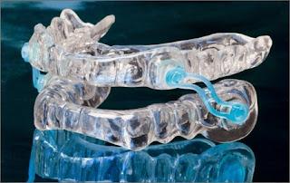 Sleep Apnea Dentist in Chicago