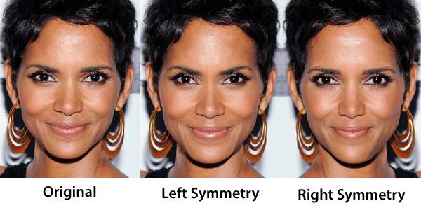 Facial Symmetry Surgery
