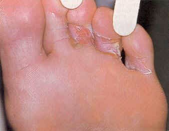 Features Of Athlete's Foot