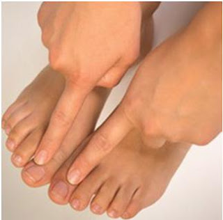 Treating Fungal Nail Infection