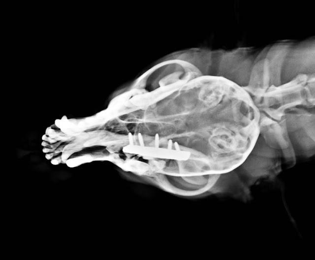 placa en fractura de mandíbula, vista anteroposterior